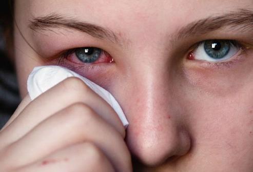 лікування вірусного кон'юнктивіту його симптоматика і різновиди