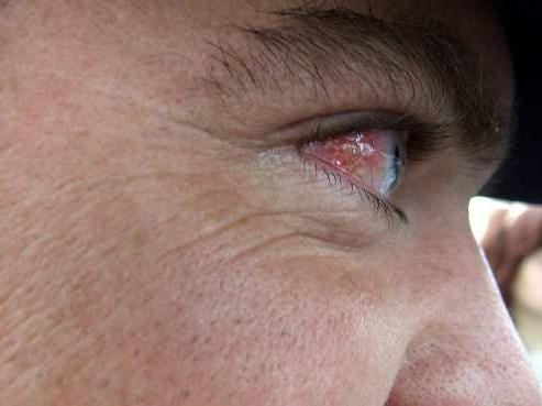 запалення ока
