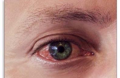 запалення ока лікування