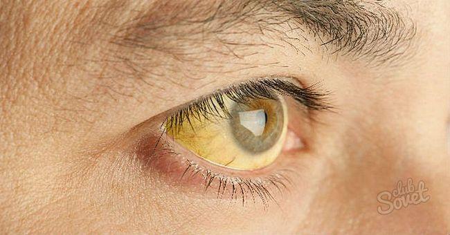 Причина-жовтих-білків-очей1