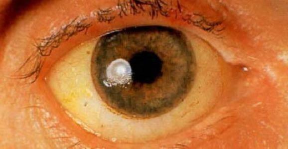 жовті білки очей
