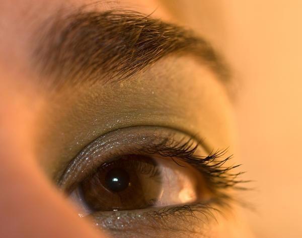 жовті плями на білках очей