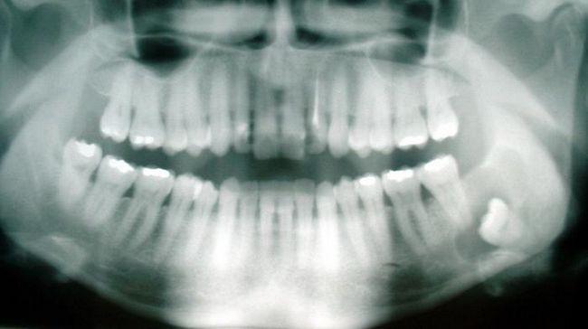 зуб мудрості росте в щоку