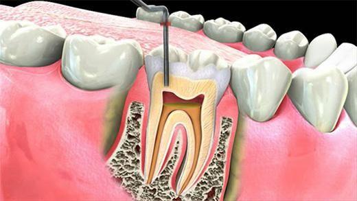 зубні нерви